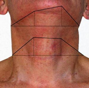 2008 – 14. Cotas del cuerpo y otras manías sistemáticas